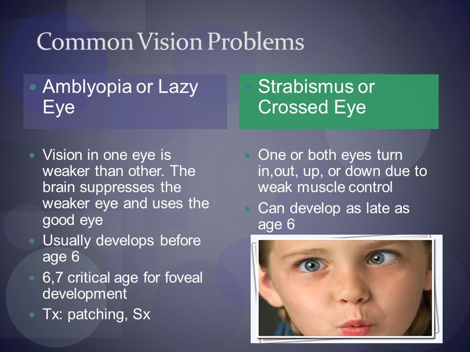 Common Vision Problems Amblyopia or Lazy Eye Vision in one eye is weaker than other.