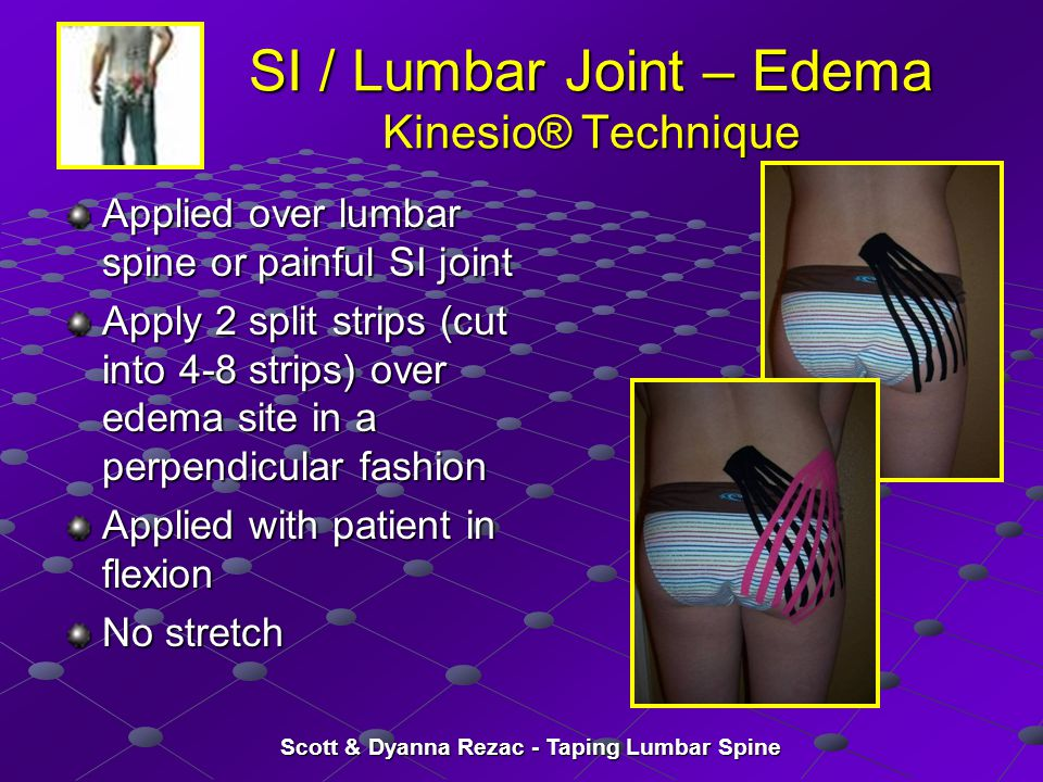 Scott & Dyanna Rezac - Taping Lumbar Spine SI / Lumbar Joint – Edema Kinesio® Technique Applied over lumbar spine or painful SI joint Apply 2 split st