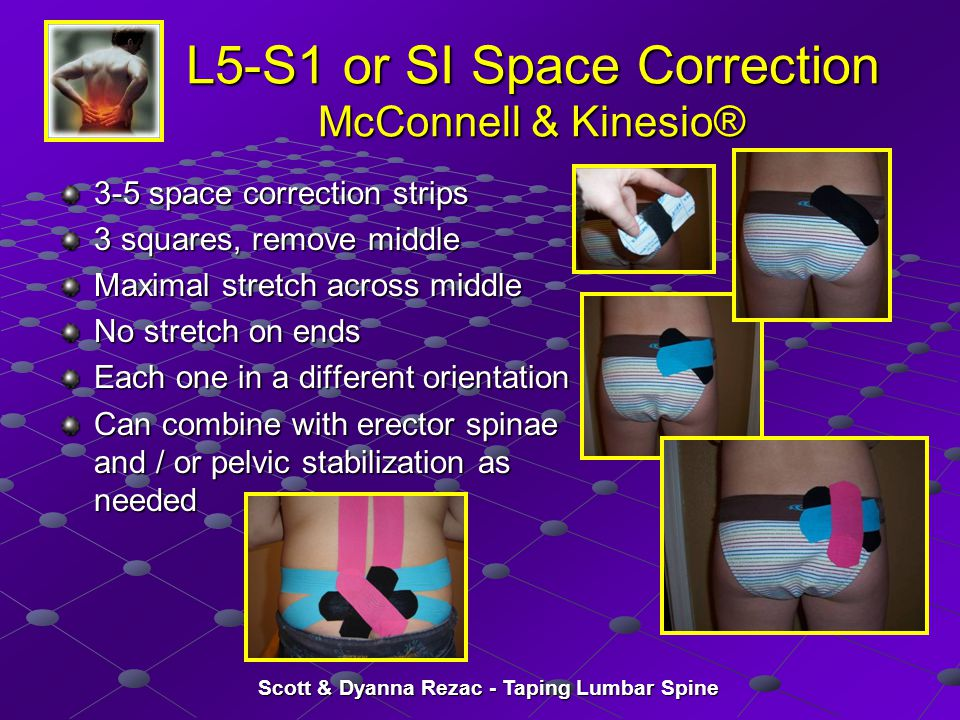 Scott & Dyanna Rezac - Taping Lumbar Spine L5-S1 or SI Space Correction McConnell & Kinesio® 3-5 space correction strips 3 squares, remove middle Maxi