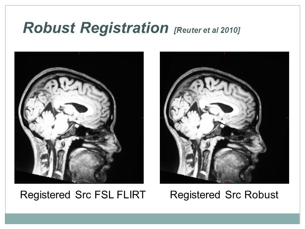 Robust Registration [Reuter et al 2010] Registered Src FSL FLIRTRegistered Src Robust