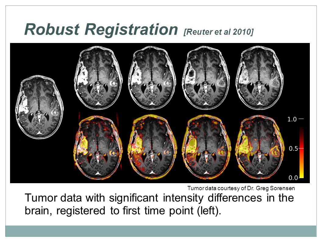 Robust Registration [Reuter et al 2010] Tumor data courtesy of Dr. Greg Sorensen Tumor data with significant intensity differences in the brain, regis