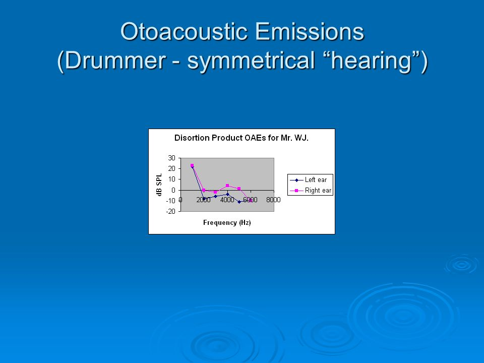 """Otoacoustic Emissions (Drummer - symmetrical """"hearing"""")"""