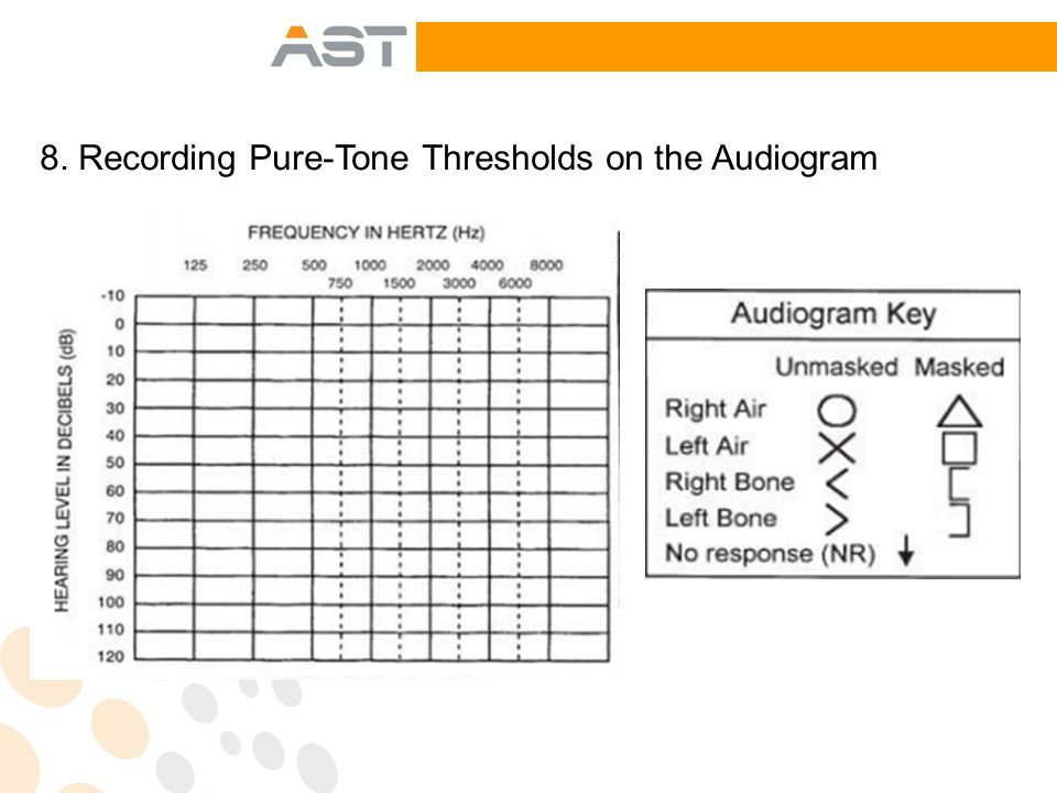 8. Recording Pure-Tone Thresholds on the Audiogram