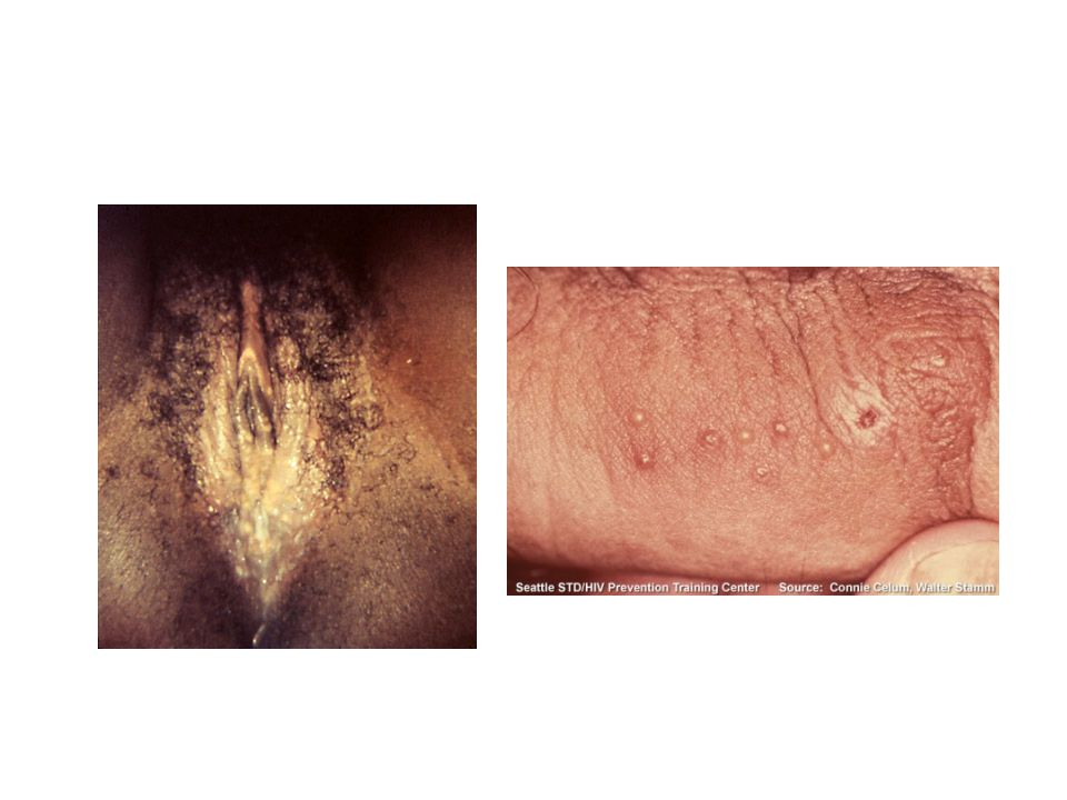Genital HSV Symptoms/signs –Mostly no sx –Small, painful, grouped vesicles/ shallow ulcers –Erythema multiforme, neuro sequellae, dissemination Investigations –DFA or Viral cell cx with typing (low SN for healing lesions) –Neg.