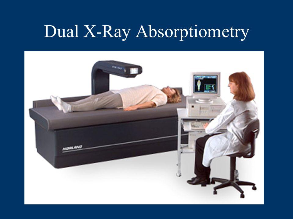 Dual X-Ray Absorptiometry
