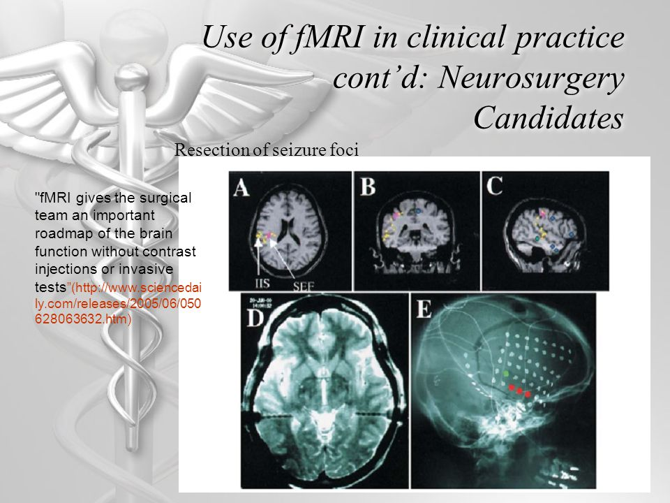 Use of fMRI in clinical practice cont'd: Neurosurgery Candidates Resection of seizure foci fMRI gives the surgical team an important roadmap of the brain function without contrast injections or invasive tests (http://www.sciencedai ly.com/releases/2005/06/050 628063632.htm)