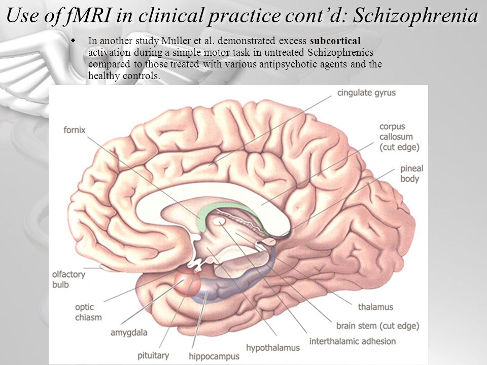 Use of fMRI in clinical practice cont'd: Schizophrenia  In another study Muller et al.