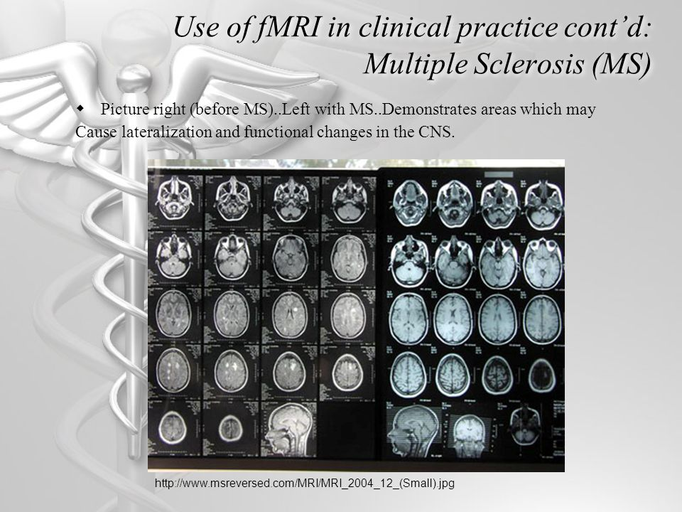 Use of fMRI in clinical practice cont'd: Multiple Sclerosis (MS)  Picture right (before MS)..Left with MS..Demonstrates areas which may Cause lateralization and functional changes in the CNS.