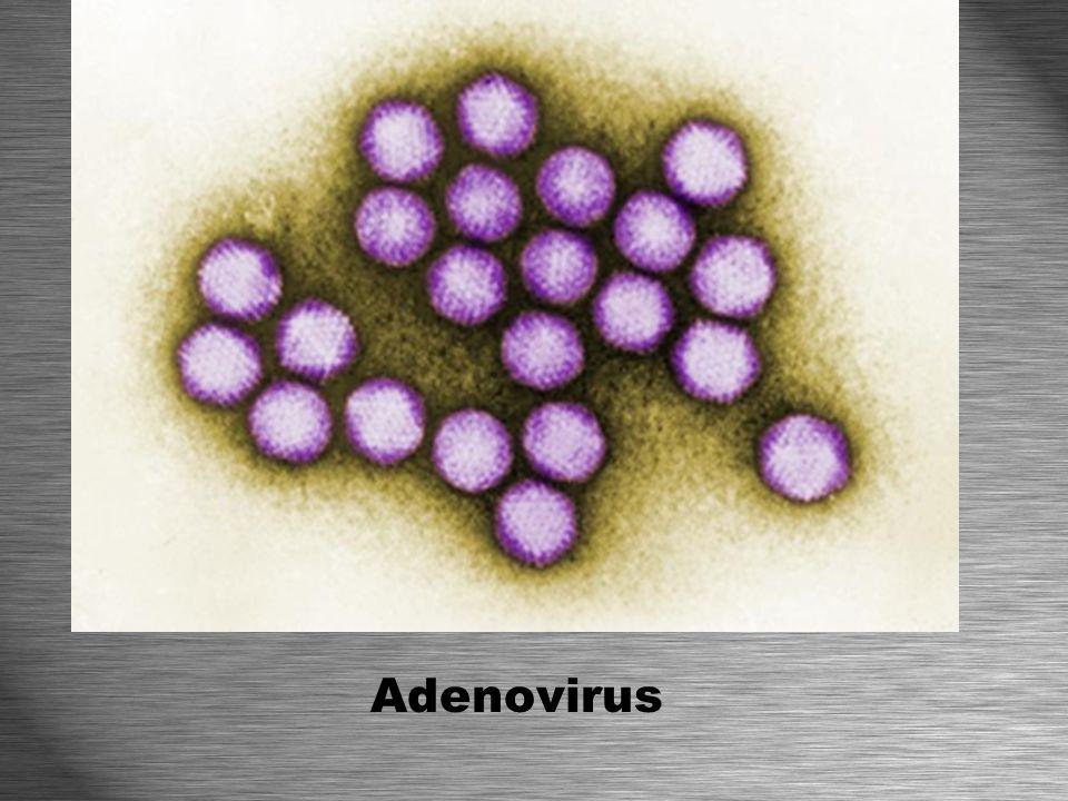 * Viroids are smaller viruses