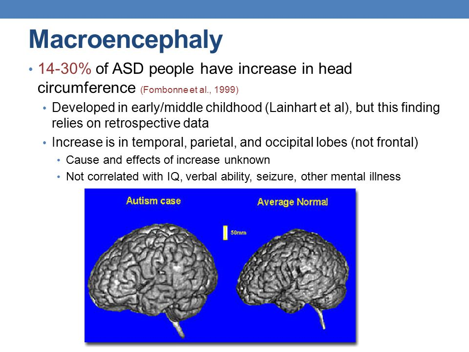 Macroencephaly 14-30% of ASD people have increase in head circumference (Fombonne et al., 1999) Developed in early/middle childhood (Lainhart et al),
