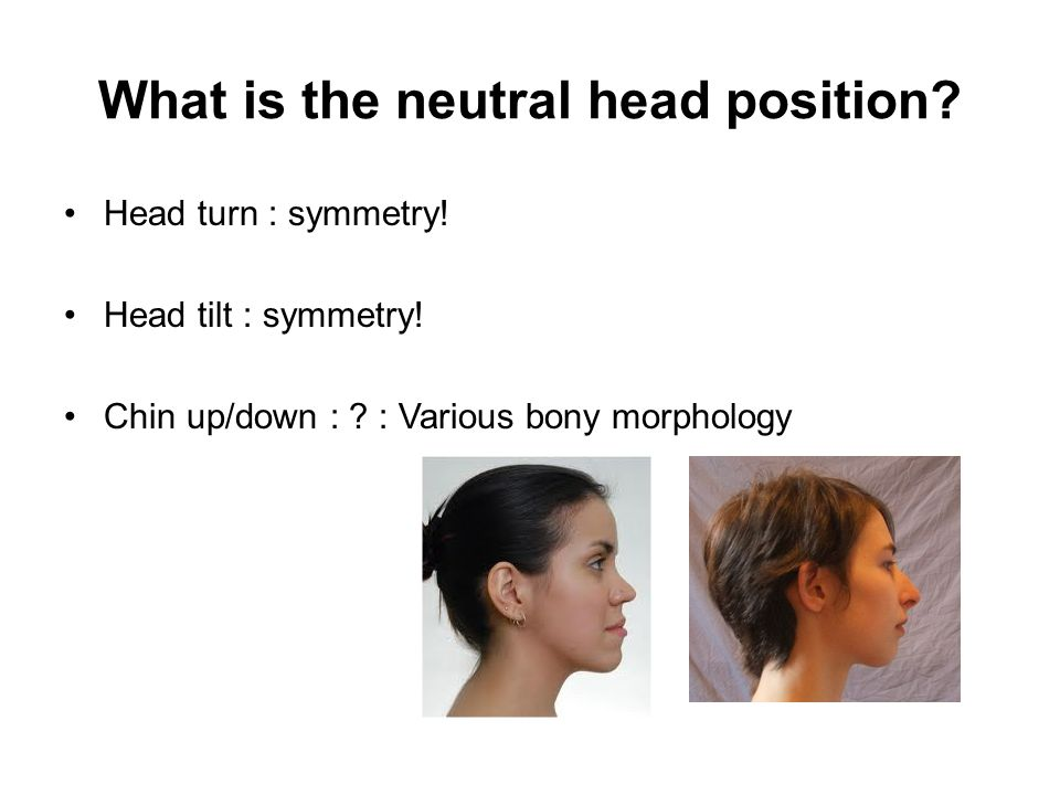 What is the neutral head position.Head turn : symmetry.