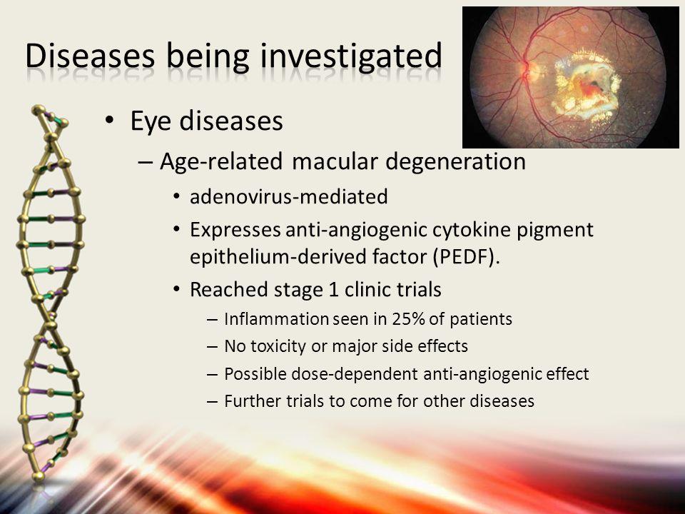 Eye diseases – Age-related macular degeneration adenovirus-mediated Expresses anti-angiogenic cytokine pigment epithelium-derived factor (PEDF). Reach