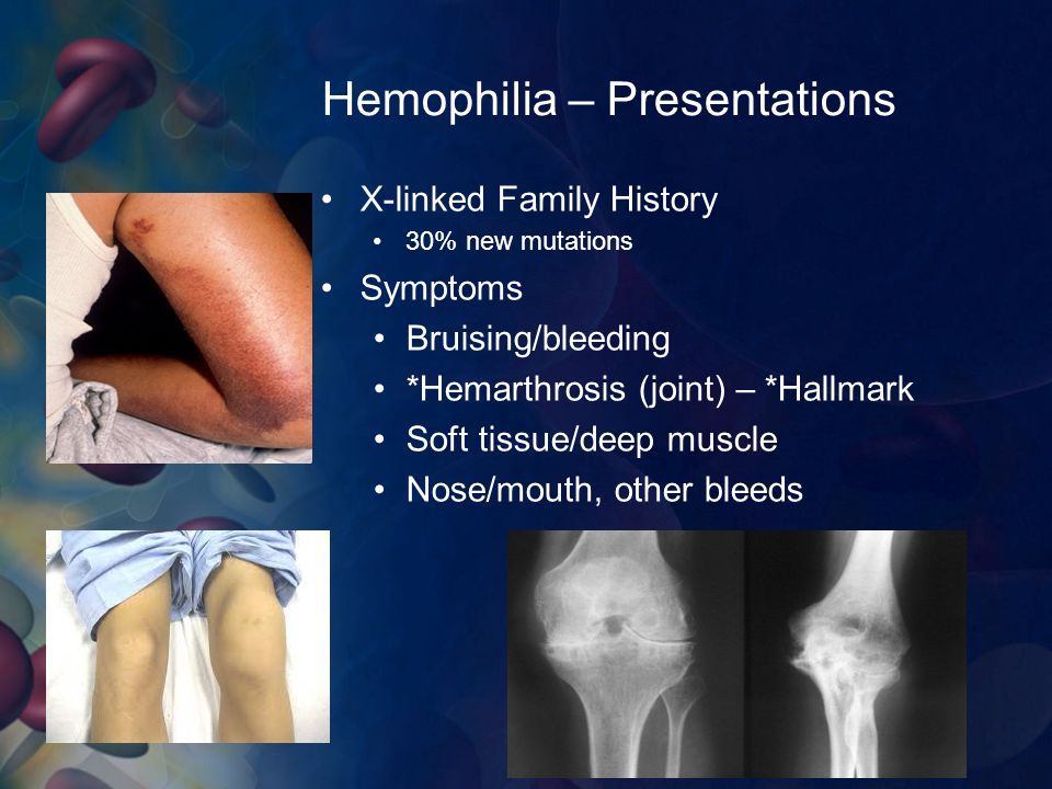 Hemophilia – Presentations X-linked Family History 30% new mutations Symptoms Bruising/bleeding *Hemarthrosis (joint) – *Hallmark Soft tissue/deep mus