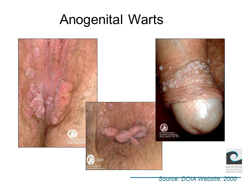 Anogenital Warts Source: DOIA Website, 2000