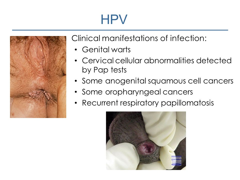 HPV Clinical manifestations of infection: Genital warts Cervical cellular abnormalities detected by Pap tests Some anogenital squamous cell cancers So