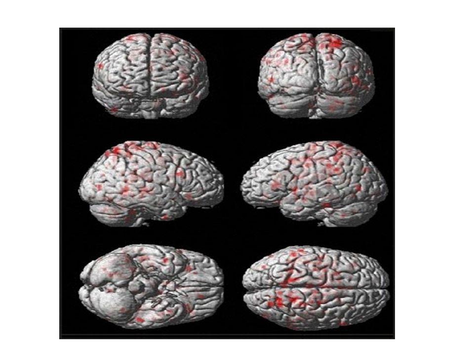 fMRI A:\