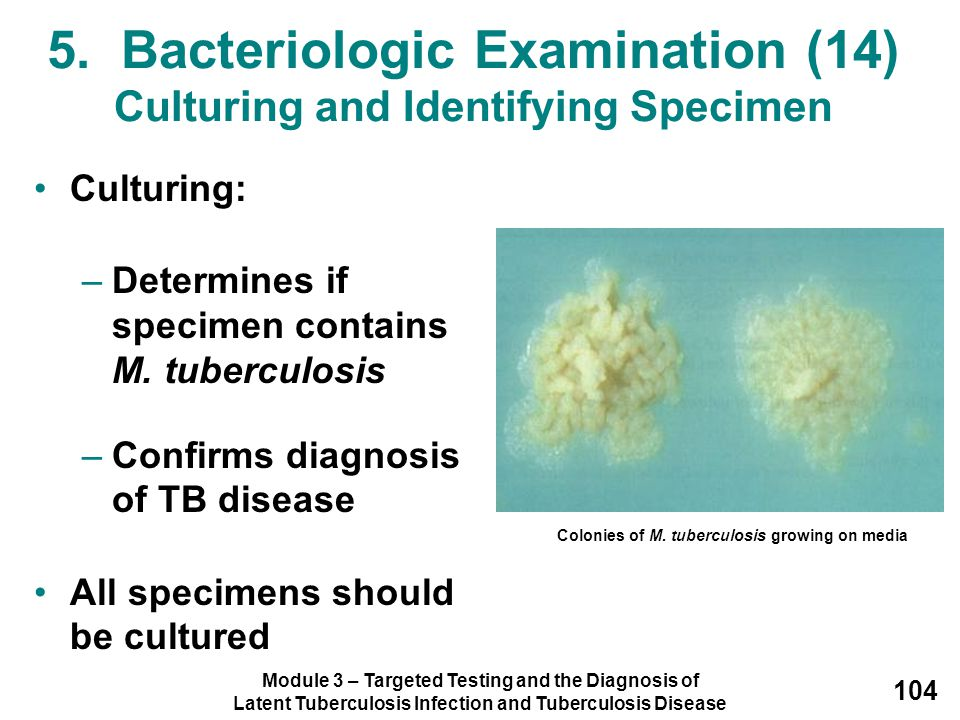 Module 3 – Targeted Testing and the Diagnosis of Latent Tuberculosis Infection and Tuberculosis Disease 104 5. Bacteriologic Examination (14) Culturin