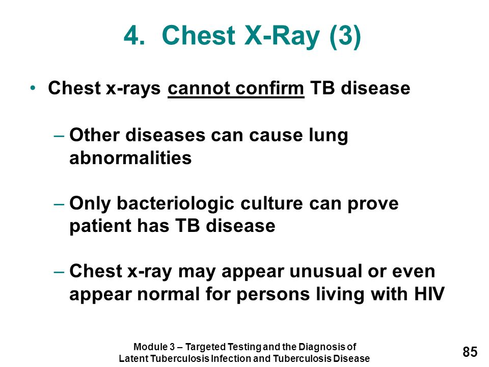 Module 3 – Targeted Testing and the Diagnosis of Latent Tuberculosis Infection and Tuberculosis Disease 85 4. Chest X-Ray (3) Chest x-rays cannot conf