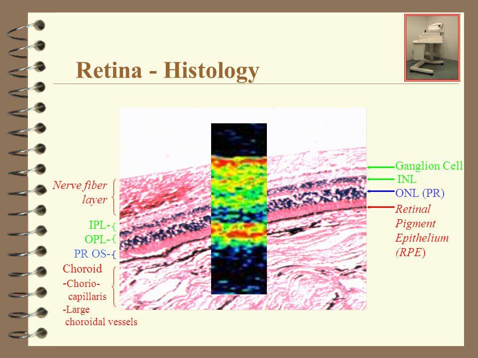 Retina - Histology Ganglion Cell Retinal Pigment Epithelium (RPE) INL ONL (PR) Nerve fiber layer IPL- OPL- PR OS- Choroid - Chorio- capillaris -Large