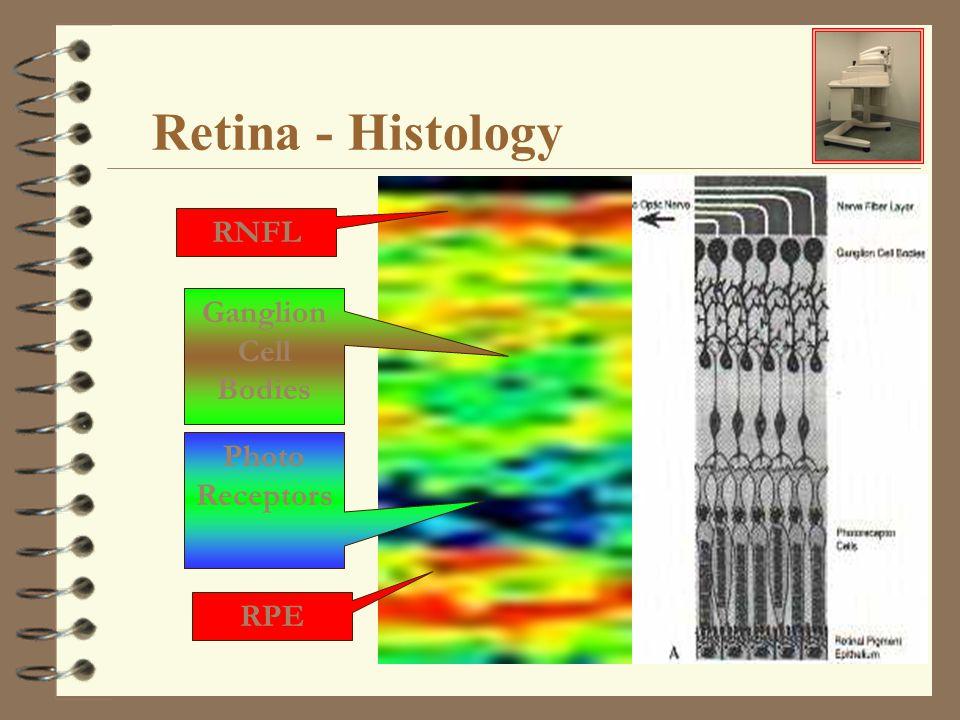 Retina - Histology RNFL RPE Ganglion Cell Bodies Photo Receptors