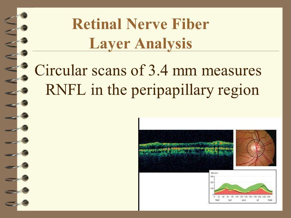 Retinal Nerve Fiber Layer Analysis Circular scans of 3.4 mm measures RNFL in the peripapillary region