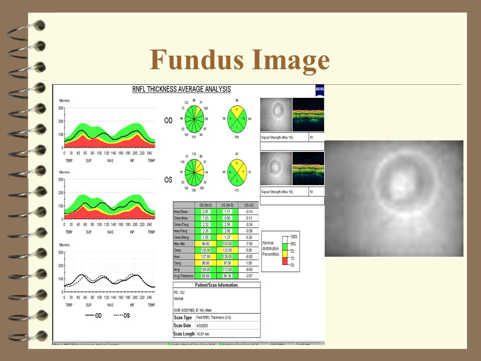 Fundus Image 4 To verify scan placement.