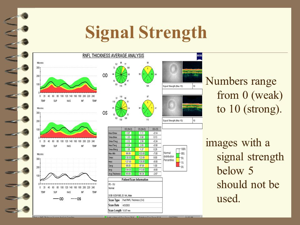 Signal Strength Numbers range from 0 (weak) to 10 (strong). images with a signal strength below 5 should not be used.