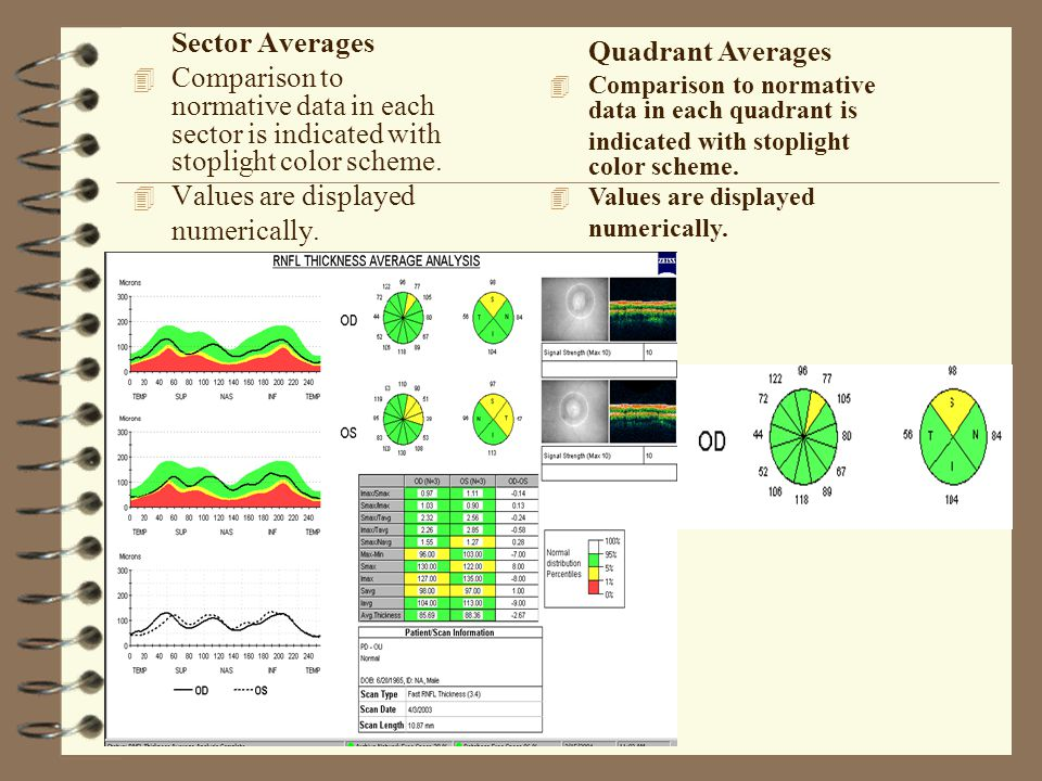 Sector Averages 4 Comparison to normative data in each sector is indicated with stoplight color scheme. 4 Values are displayed numerically. Quadrant A