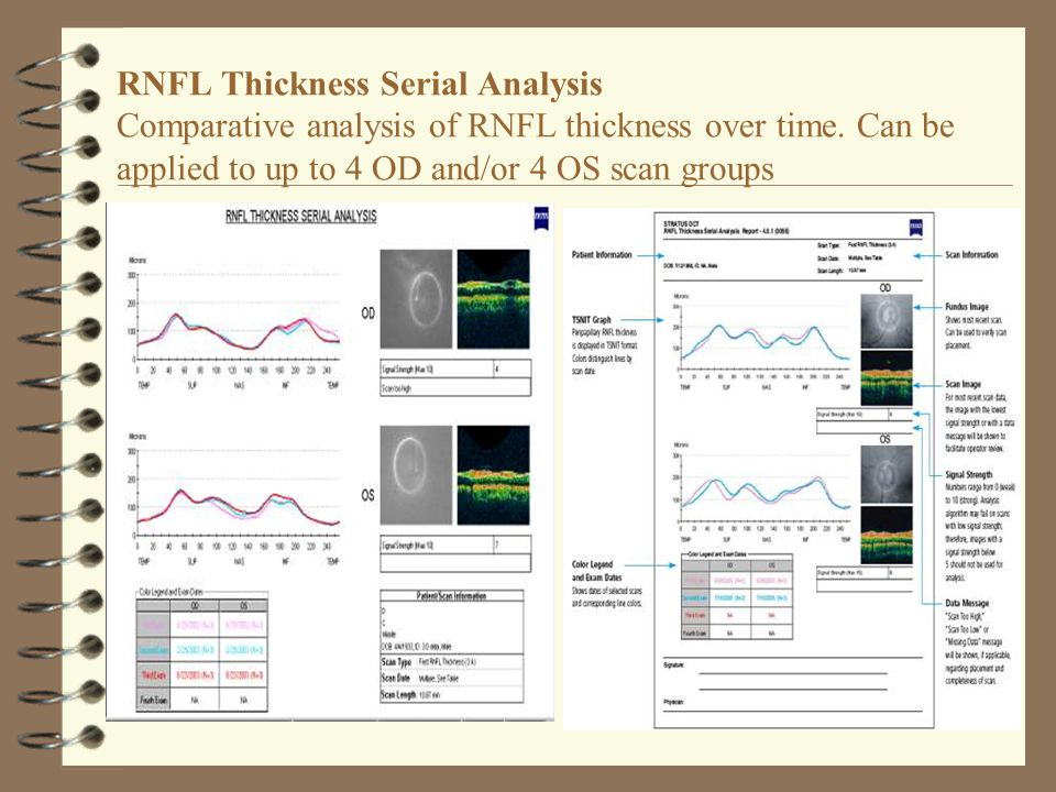 RNFL Thickness Serial Analysis Comparative analysis of RNFL thickness over time. Can be applied to up to 4 OD and/or 4 OS scan groups