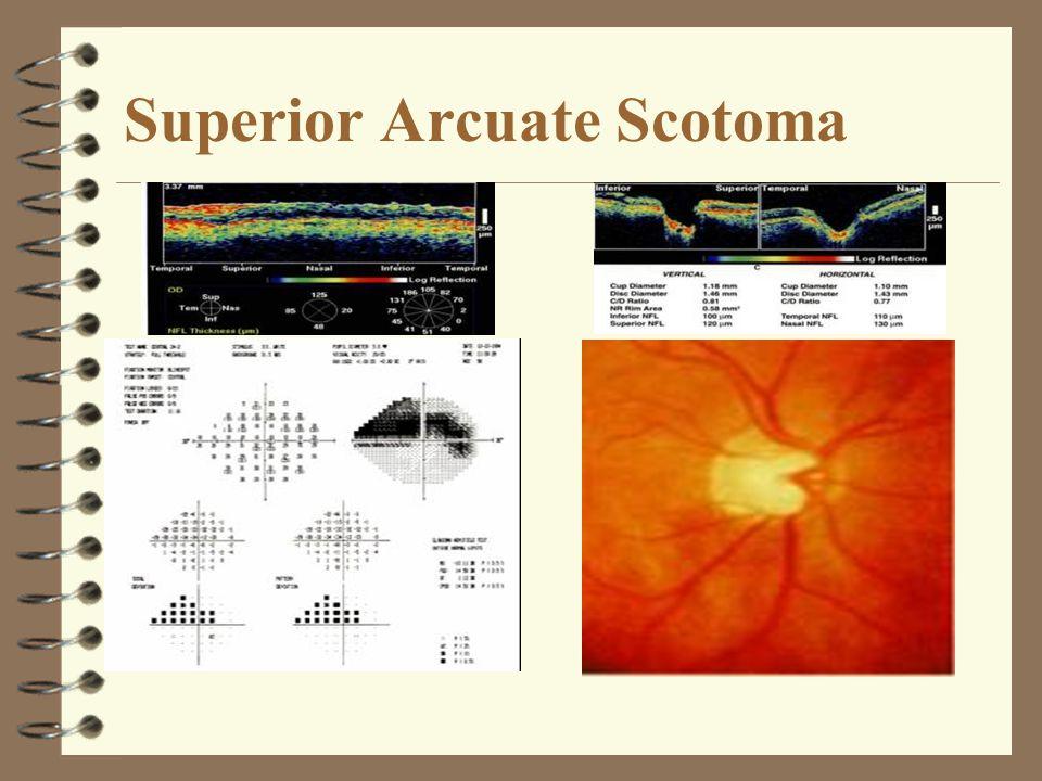 Superior Arcuate Scotoma