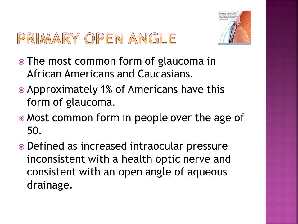  The most common form of glaucoma in African Americans and Caucasians.