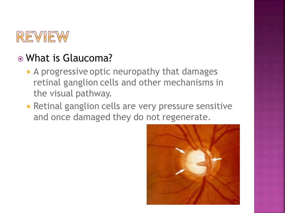  What is Glaucoma?  A progressive optic neuropathy that damages retinal ganglion cells and other mechanisms in the visual pathway.  Retinal ganglio
