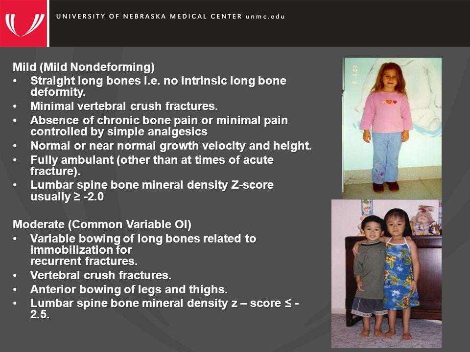 Mild (Mild Nondeforming) Straight long bones i.e. no intrinsic long bone deformity.Straight long bones i.e. no intrinsic long bone deformity. Minimal