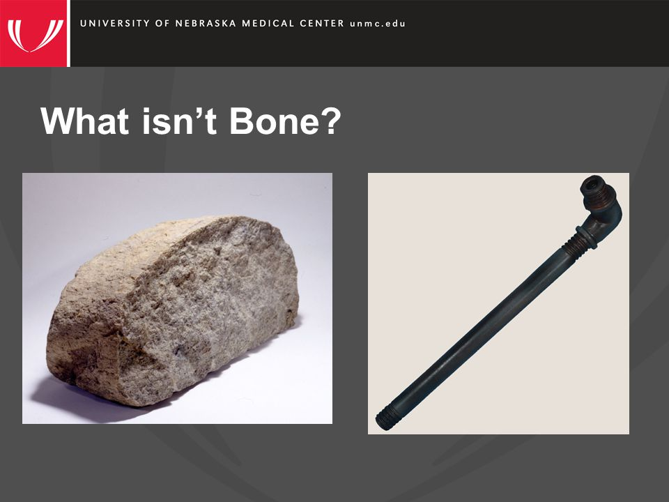 What isn't Bone