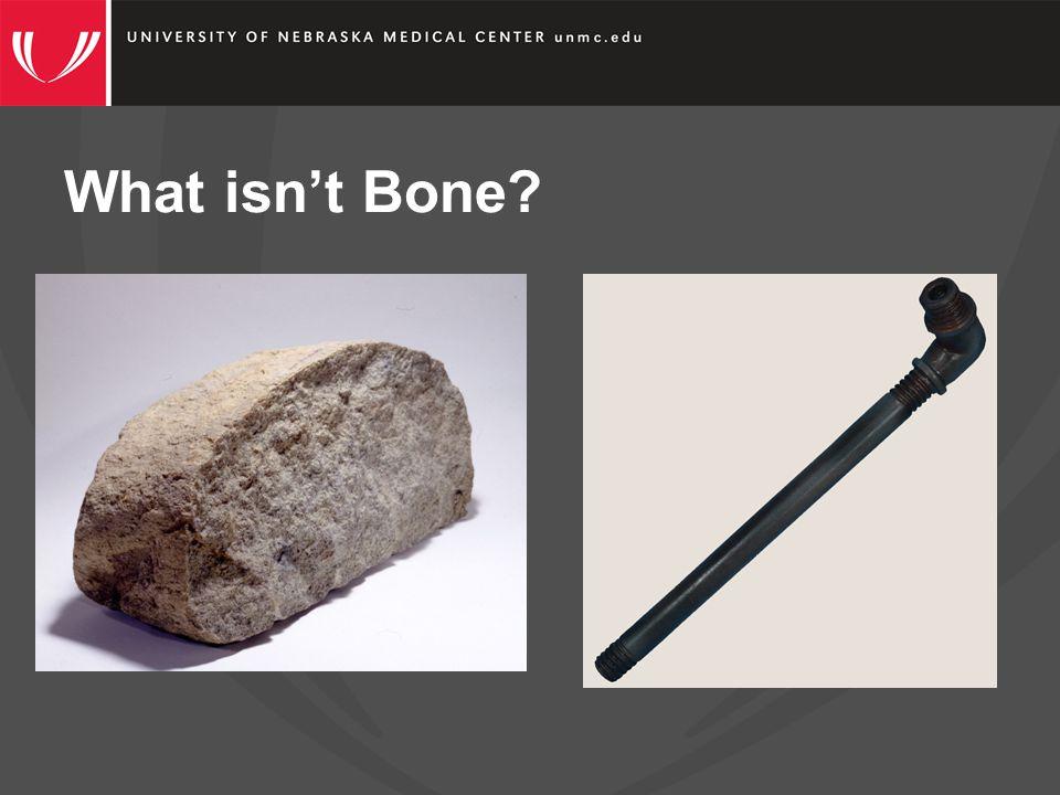 What is Bone.