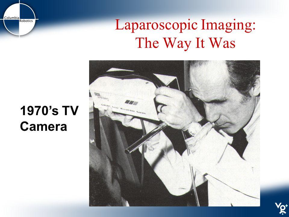 Laparoscopic Imaging: The Way It Was 1970's TV Camera