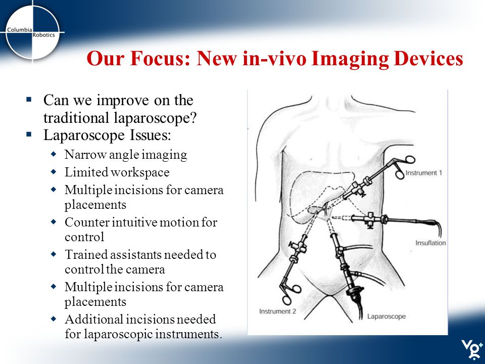 Our Focus: New in-vivo Imaging Devices  Can we improve on the traditional laparoscope.