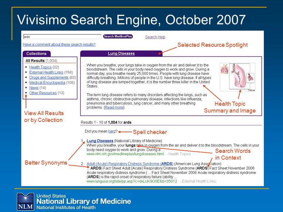 Vivisimo Search Engine, October 2007 Selected Resource Spotlight Health Topic Summary and Image Spell checker Better Synonyms View All Results or by Collection Search Words in Context