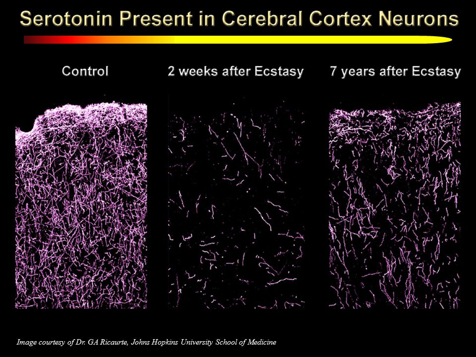 22 Image courtesy of Dr. GA Ricaurte, Johns Hopkins University School of Medicine