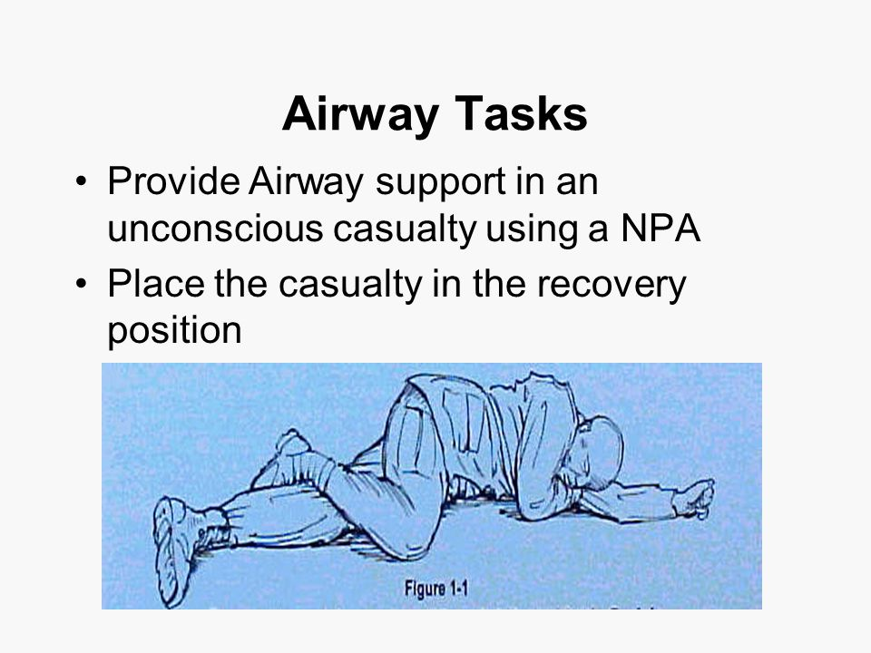 Airway Tasks Provide Airway support in an unconscious casualty using a NPA Place the casualty in the recovery position