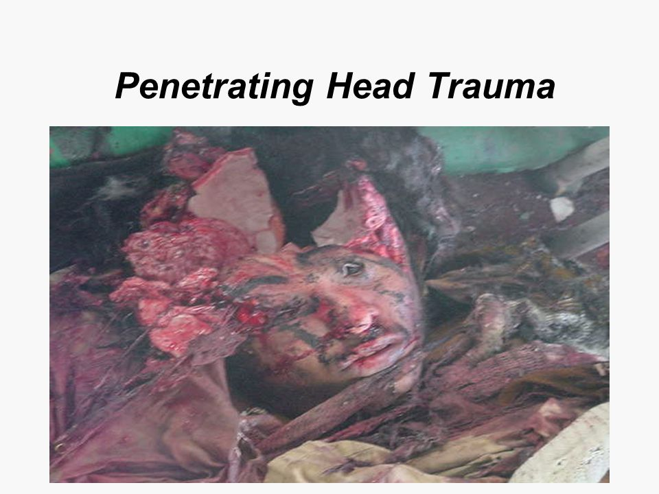Penetrating Head Trauma