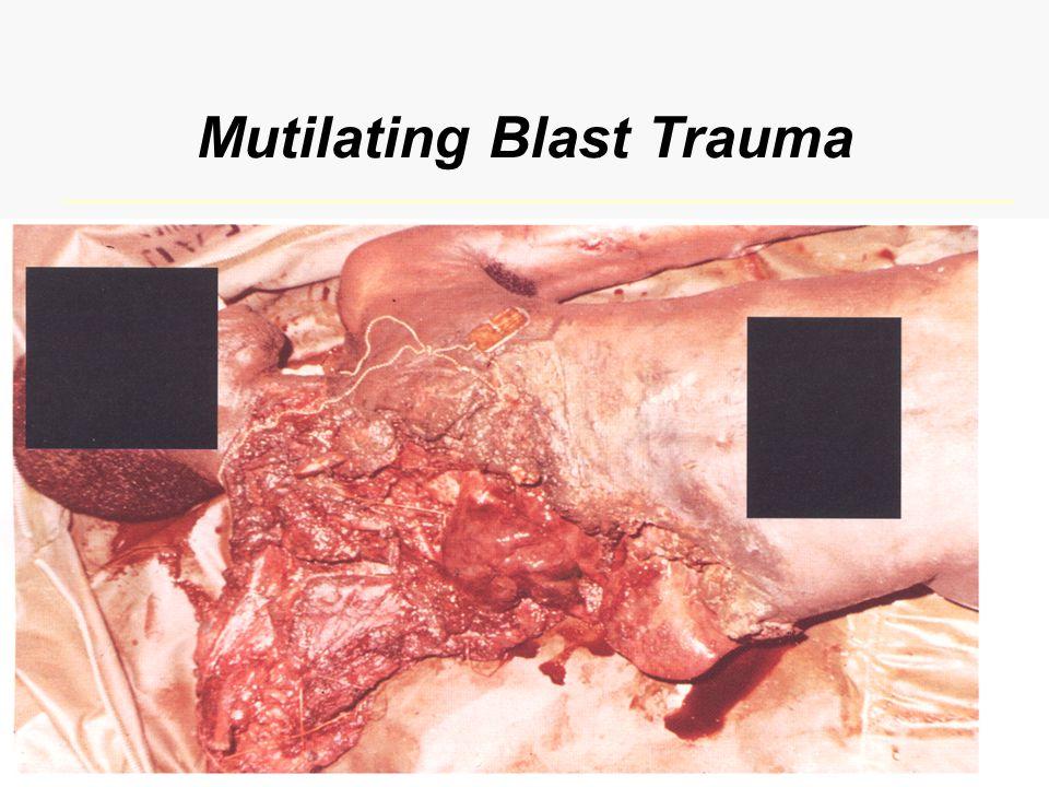 Mutilating Blast Trauma