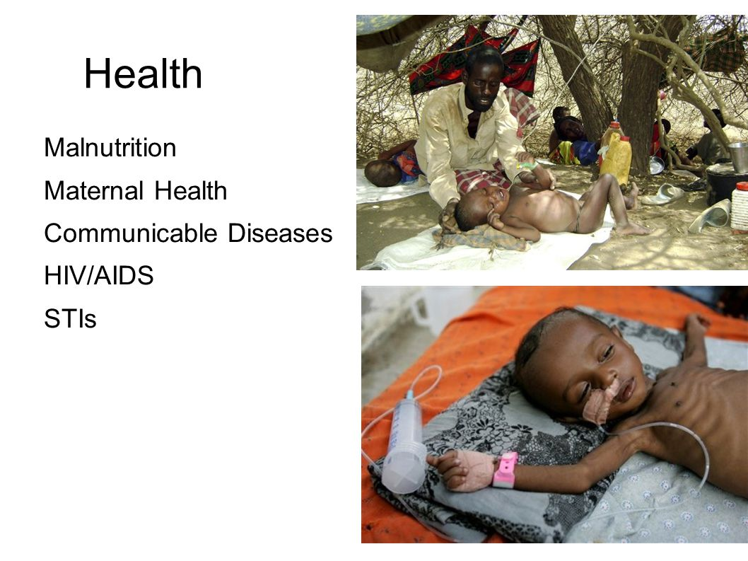 Health Malnutrition Maternal Health Communicable Diseases HIV/AIDS STIs