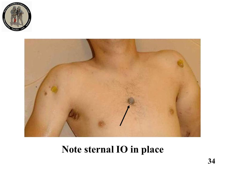 Note sternal IO in place 34