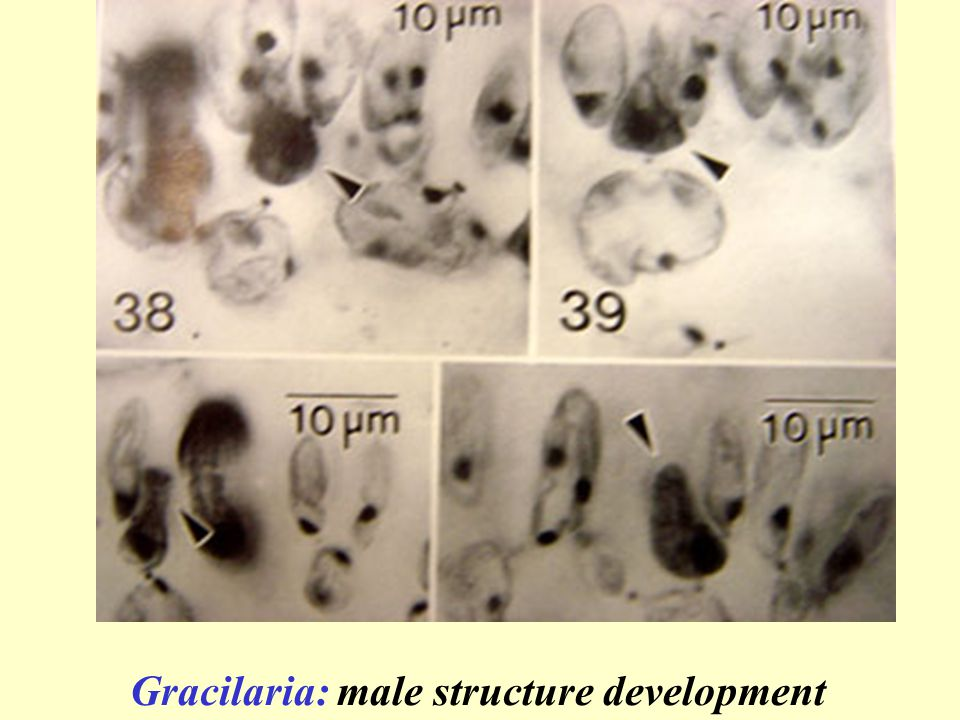 Gracilaria: male structure development