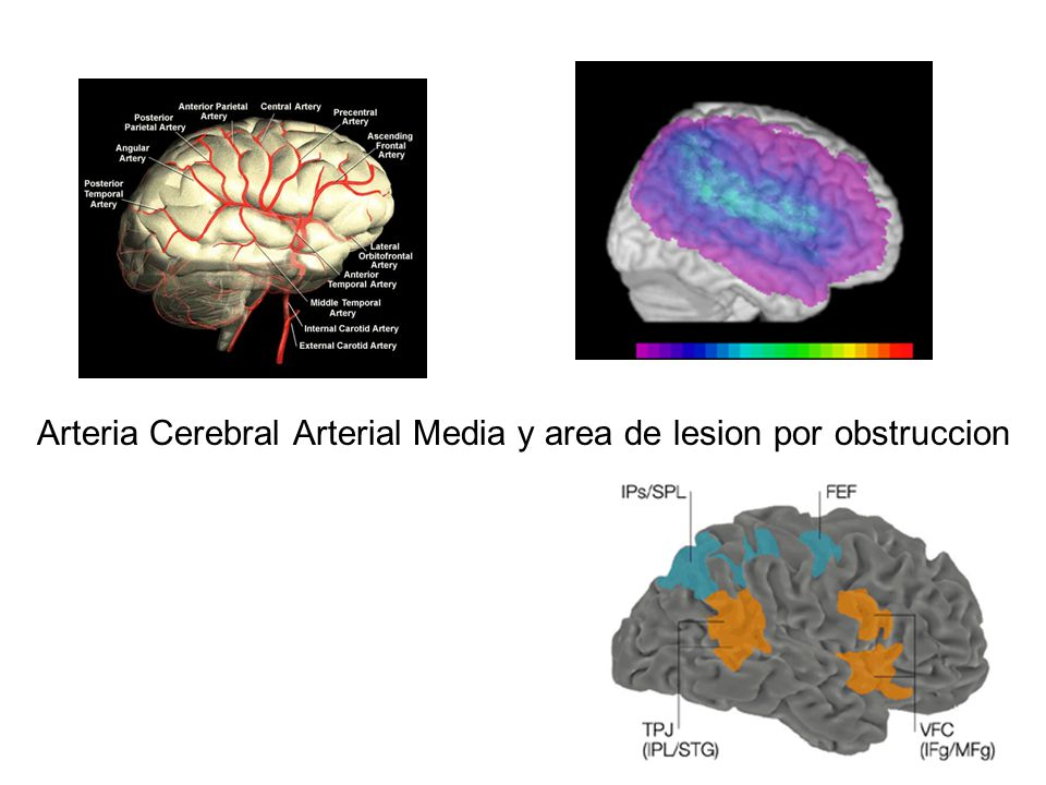 Arteria Cerebral Arterial Media y area de lesion por obstruccion