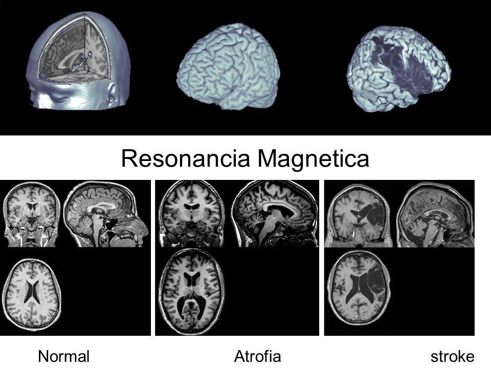 Resonancia Magnetica NormalAtrofiastroke