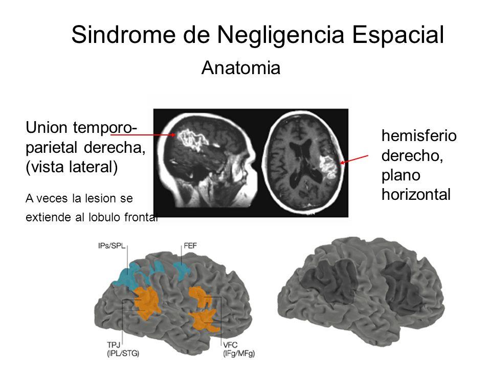 Sindrome de Negligencia Espacial Anatomia hemisferio derecho, plano horizontal Union temporo- parietal derecha, (vista lateral) A veces la lesion se extiende al lobulo frontal