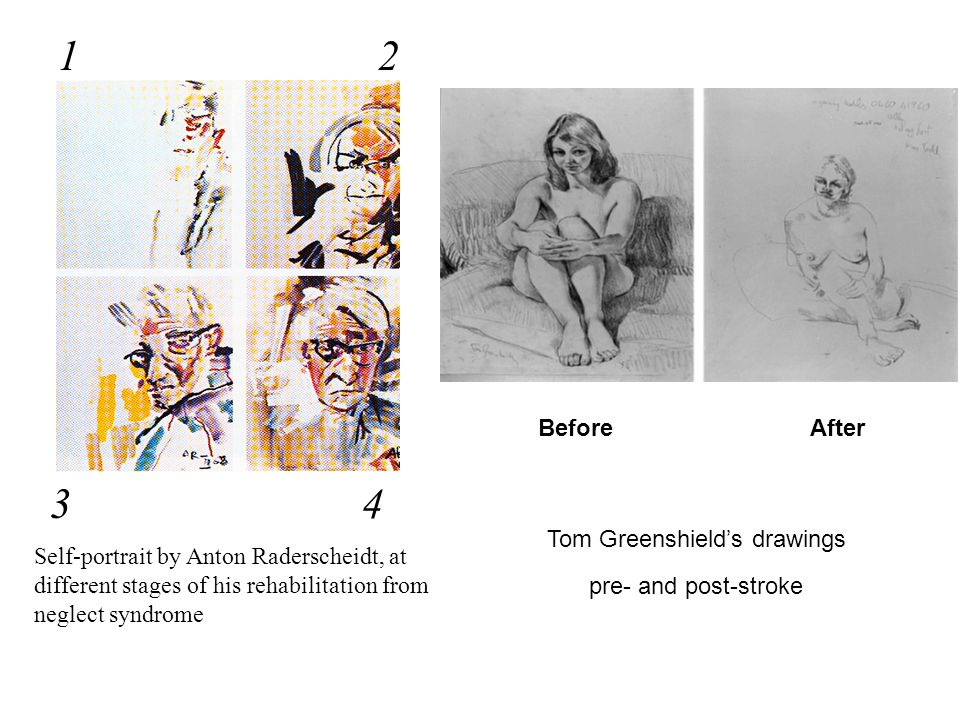 Self-portrait by Anton Raderscheidt, at different stages of his rehabilitation from neglect syndrome 3 21 4 Tom Greenshield's drawings pre- and post-stroke BeforeAfter