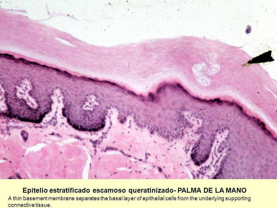 Epitelio estratificado escamoso queratinizado- PALMA DE LA MANO A thin basement membrane separates the basal layer of epithelial cells from the underl